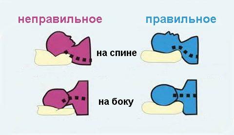 Hoofdpositie op het kussen